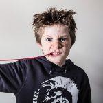 自閉症や発達障害の服や爪を噛む噛み癖とは